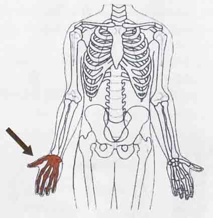 Contoh tulang pendek, yaitu tulang pergelangan tangan (tanda panah).